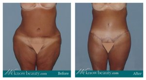 phoca thumb m 1-1-body-lift-before-after-anous
