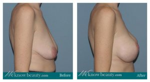 phoca thumb m 1-2-breast-lift-before-after-anous