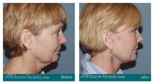 phoca thumb m 1-3-facelift-before-after-anous