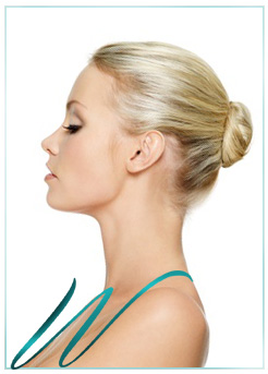 Nose Job (Rhinoplasty) Beverly Hills Picture